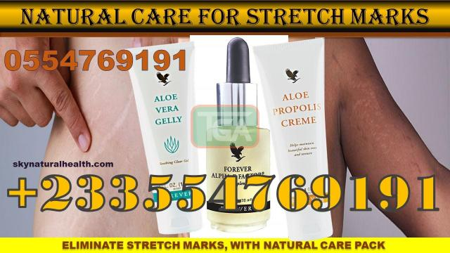 GET RID OF STRETCH MARKS NATURALLY - 1
