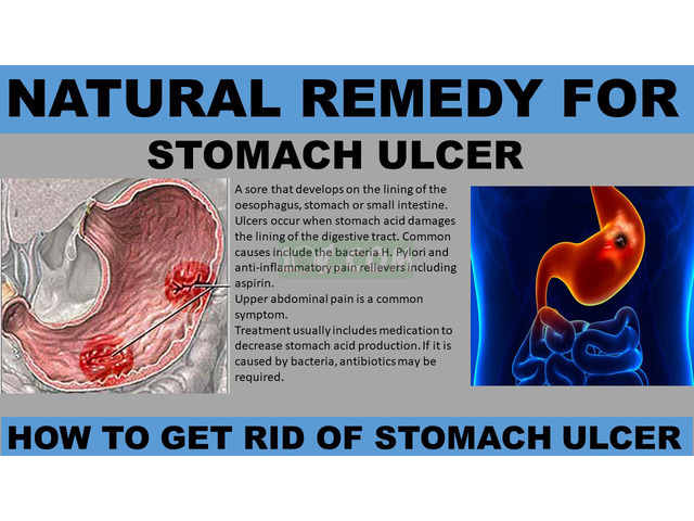NATURAL REMEDY FOR STOMACH ULCER - 1